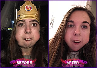 kayla before and after